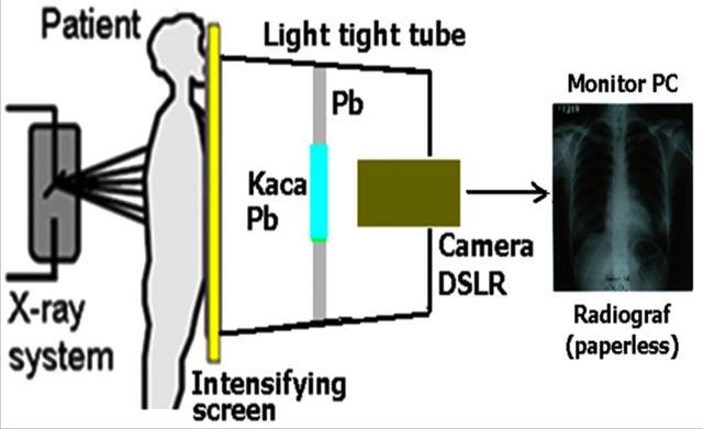 Radiografi Digital Mobile untuk Lab Fisika Medik